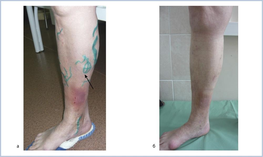 Чем снять зуд при варикозе ног
