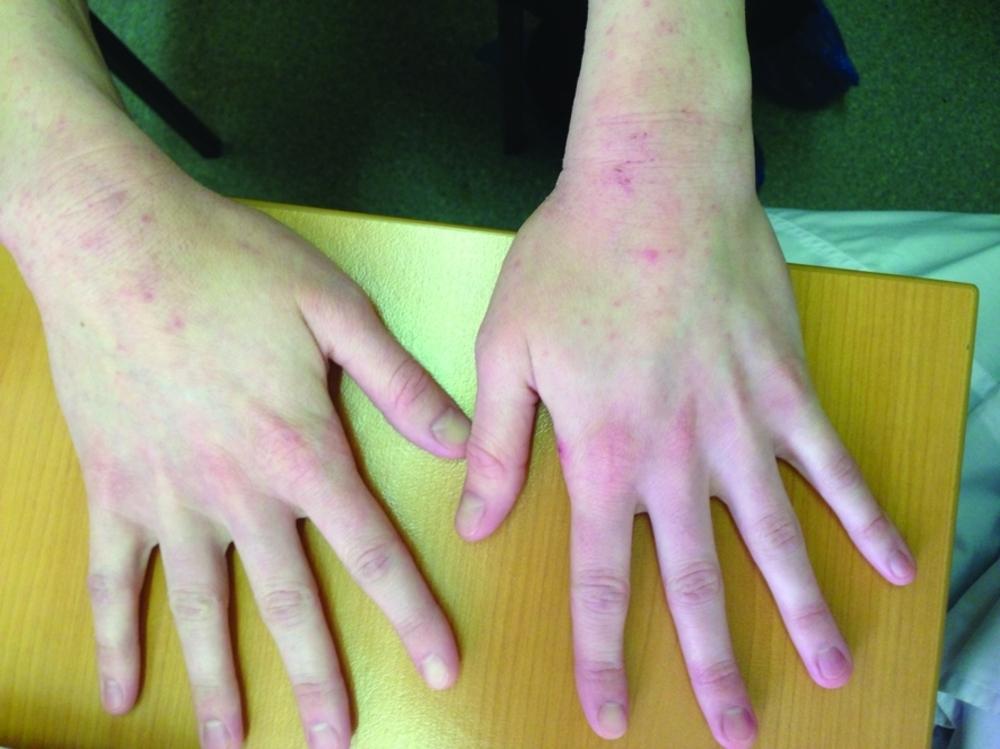 Хронический прогрессирующий атопический дерматит