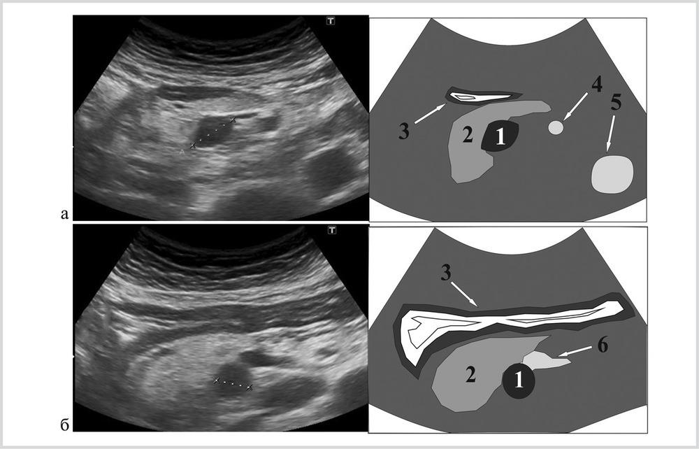Ультразвуковое исследование в диагностике и стадировании солидных  onkologia 2014 03 06 ris2