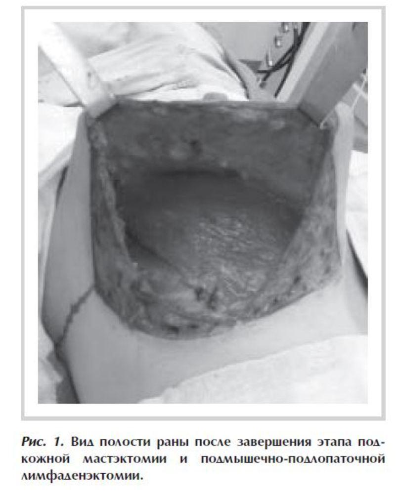 Эндопротез и реконструкция молочной железы