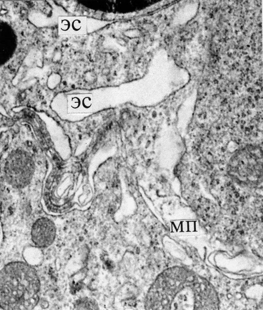 Клетки Сертоли