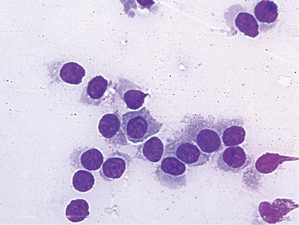 Морфологическая верификация диагноза