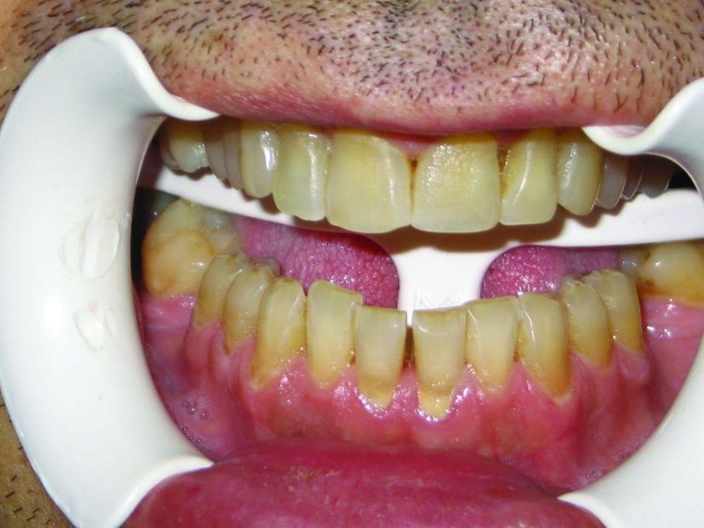 Классификация и методы отбеливания зубов