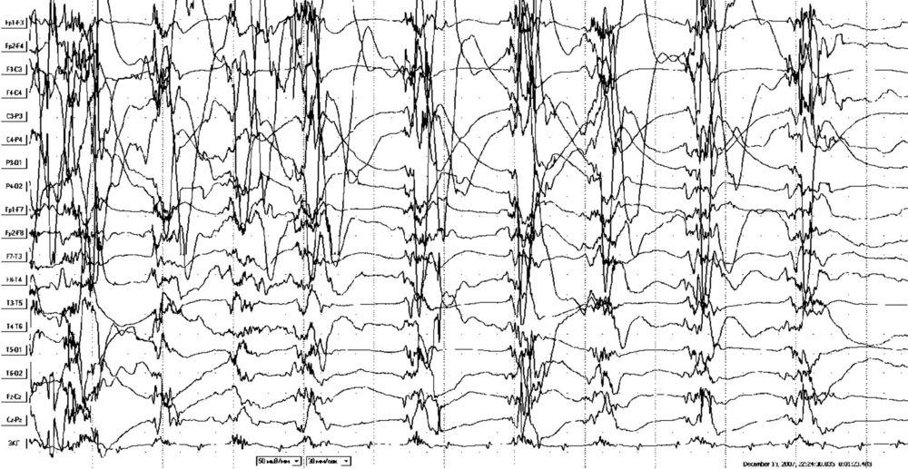Основы клинической электроэнцефалографии. Патологическая ЭЭГ при эпилепсии