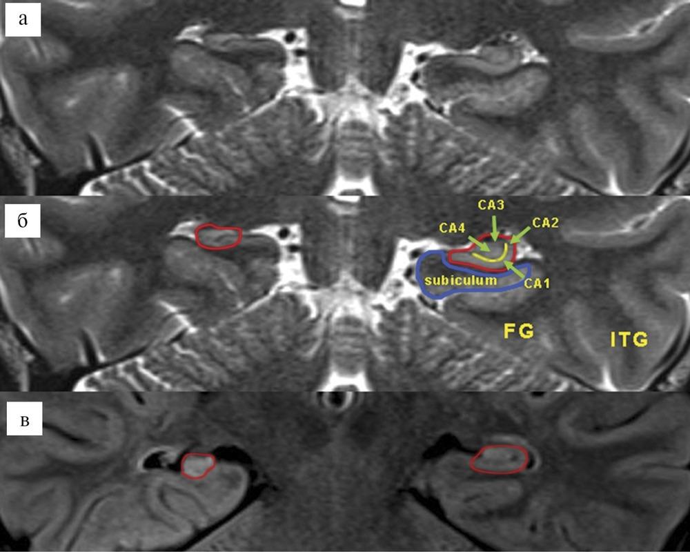 Мезиальный височный склероз (склероз гиппокампа)