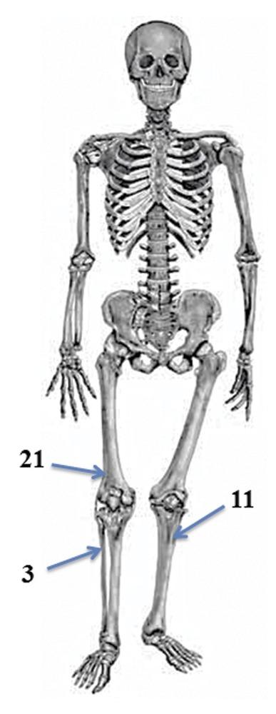 Фиброзный кортикальный дефект бедренной кости