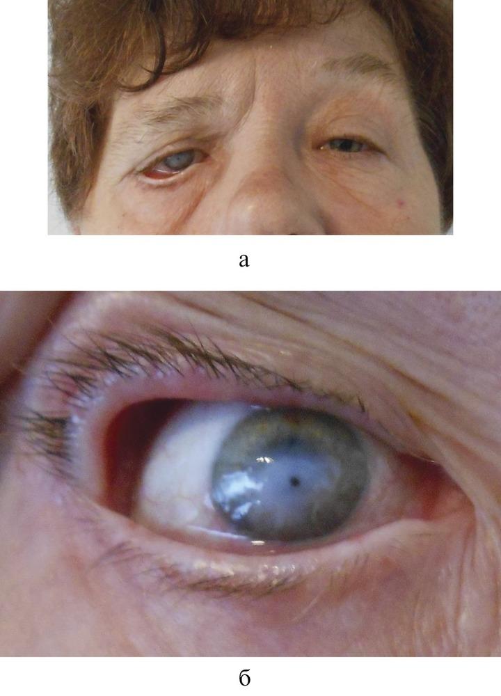 конъюнктивит после блефаропластики лечение