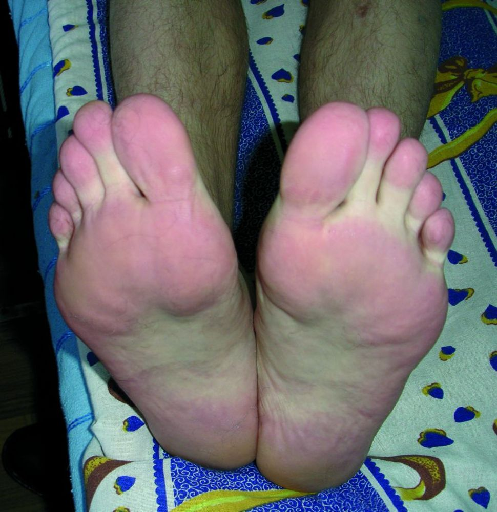 Артрит правого голеностопного сустава код мкб - Суставправ