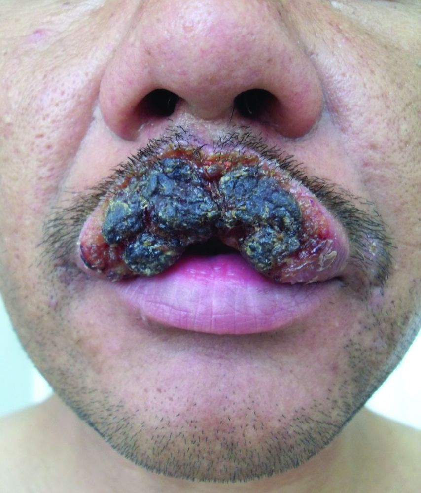 сифилитическая рупия на губе