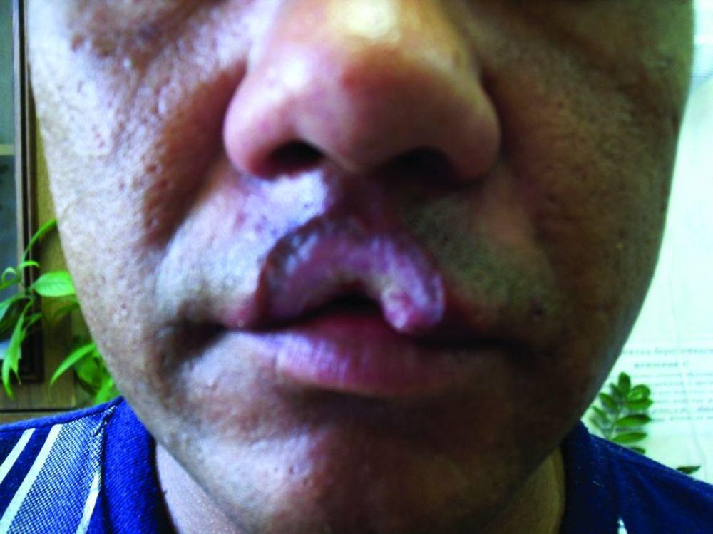 отек и гуммы на лице при третичном сифилисе