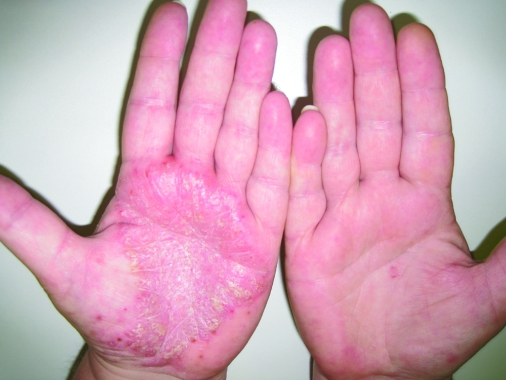 Лечение Псориаза Содой Отзывы