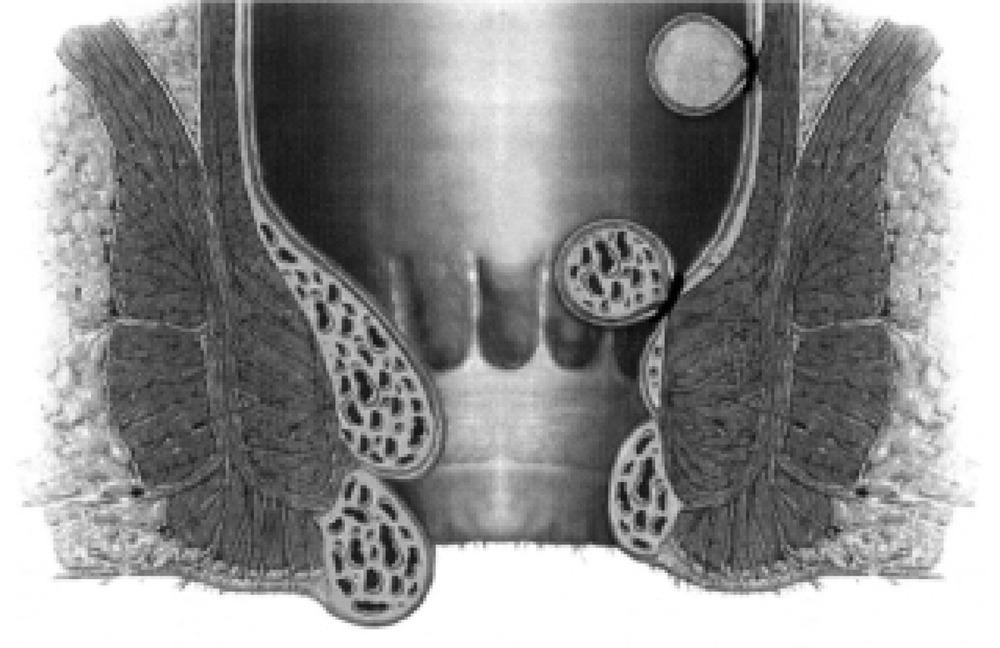 Лечение Геморроя Хирургическим Путем Цена